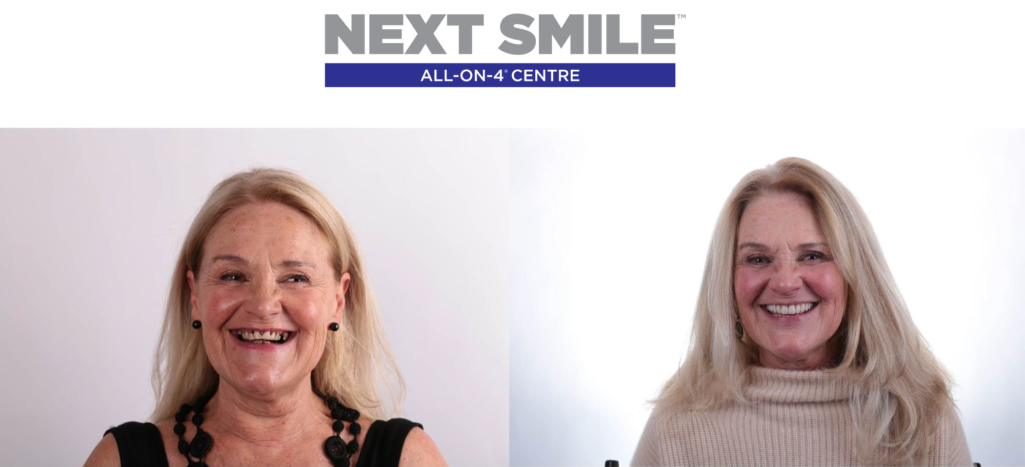 next smile before and after